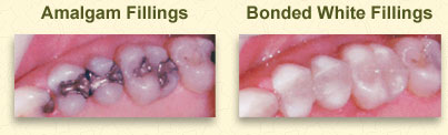 White Dental Fillings Dentist Canfield OH
